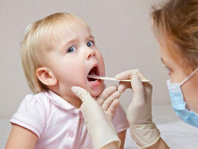 trẻ bị viêm họng là do vi rút
