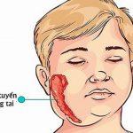 Bệnh quai bị trẻ em là gì cha mẹ trẻ  không nên chủ quan về căn bệnh này.