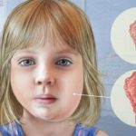 Bệnh quai bị ở trẻ, triệu chứng và cách phòng ngừa