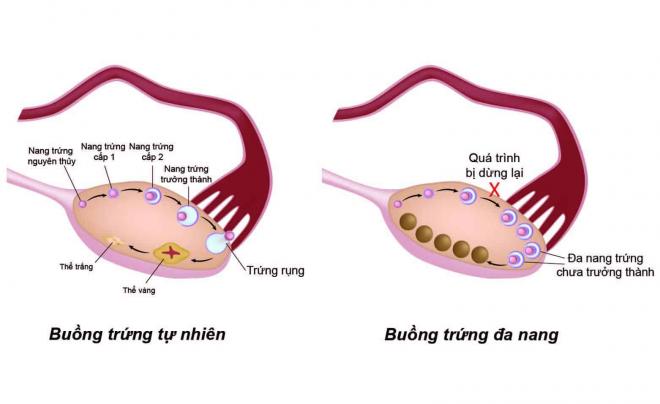 Buồng trứng đa nang dẫn đến sự mất cân bằng hormone nam và nữ trong cơ thể.
