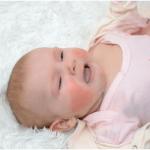 Chăm sóc bé bị rôm sảy?Top 5 sản phẩm sữa tắm trị rôm sảy cho bé tốt nhất