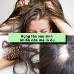 Cách trị rụng tóc sau sinh hiệu quả cho các mẹ