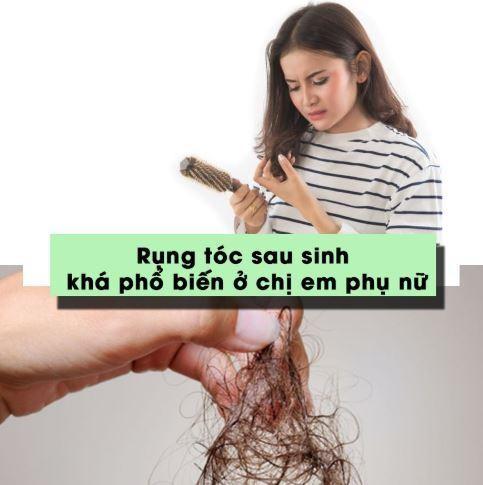 Rụng tóc sau sinh là vấn đề phổ biến ở phụ nữ