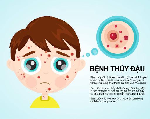 Bệnh thủy đậu rất dễ bị lây nhiễm từ người sang người