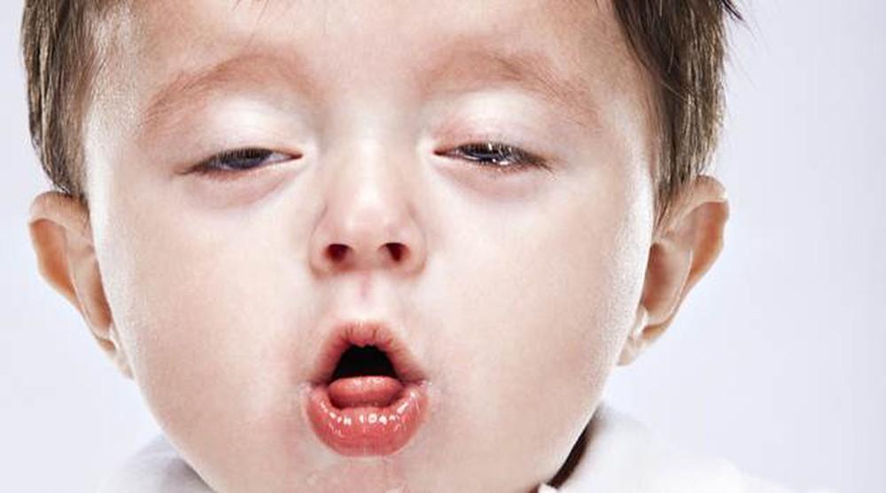viêm phổi gây ho